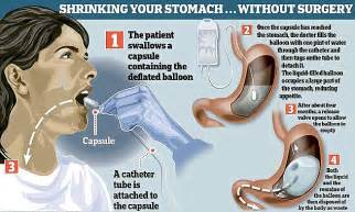 gas filled gastric balloon helps obese patients lose as much weight daily mail