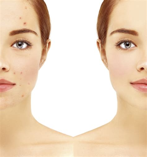 brufoli e alimentazione acne e alimentazione i segreti per una pelle sana unadonna