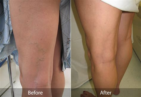 varicose and spider vein removal maryland d c