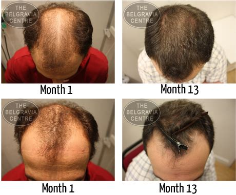 20 month hair thinning on top male hair loss all you need to know