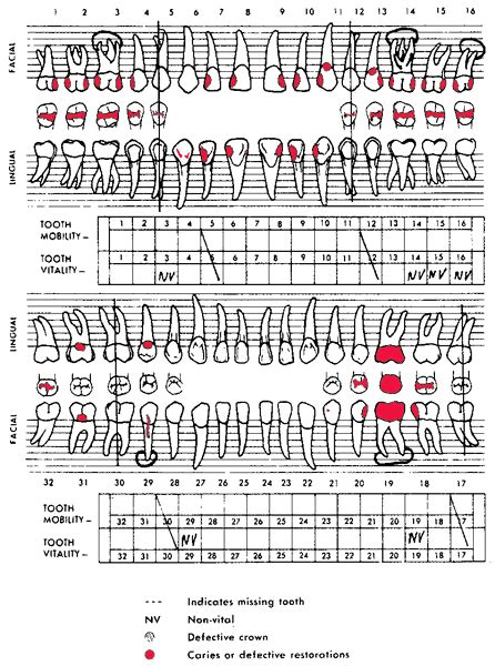 tooth charting diagram electronic dental records debunking the edr wives tales