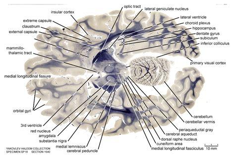 horizontal section of brain horizontal level 1640 as fiber stain