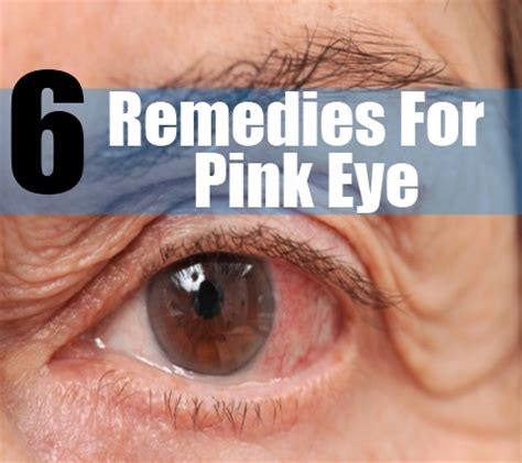 6 how to treat a pink eye home remedy for pink