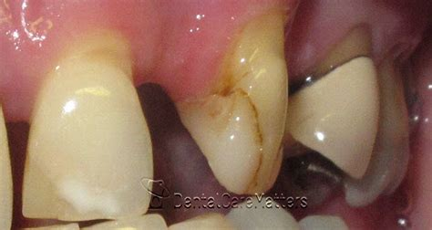 missing teeth   problems  treatment