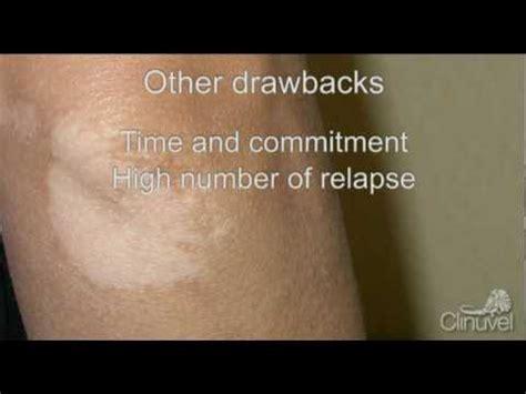 vitiligo psoriasis uvb narrowband l vitiligo and stem cells narrowband uvb phototherapy in