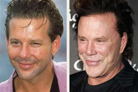 bad plastic surgery awards mickey rourke before and after