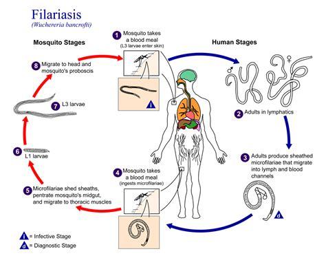 pathophysiology of leptospirosis diagram filariasis