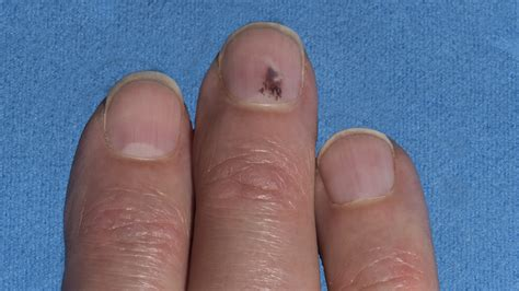 bruised nail bed melanoma under the nail pictures photos