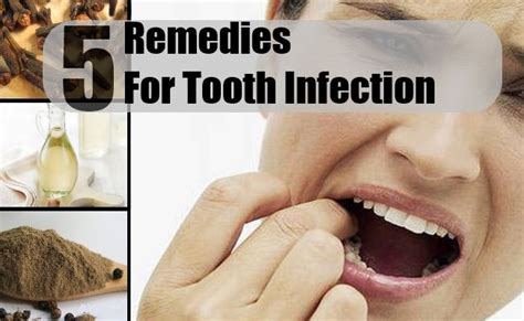 5 home remedies for tooth infection treatments