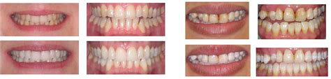 comfort dental teeth whitening teeth whitening dentist ealing local your comfort is