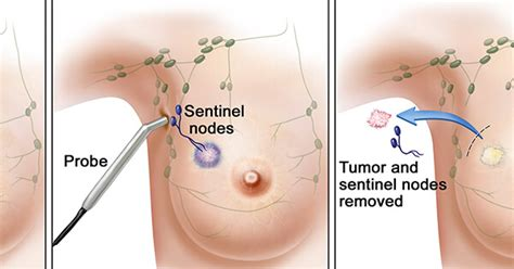 mammary tumor removal cost lymph node removal in early stage breast cancer national cancer institute