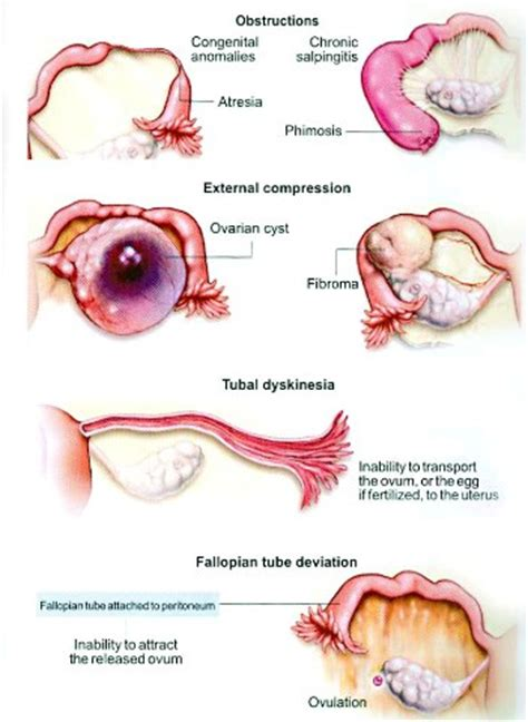 Secondary Infertility After C Section by Causes Of Infertility In Dr N Layyous