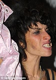 Scratches On Winehouses Arm Spark Fears The Singer Is Self Harming by Images Winehouse Winehouse Cuts Herself To
