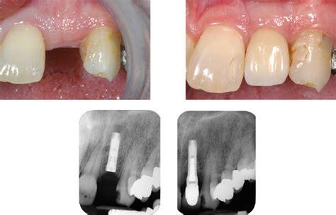 4 missing front teeth implants implants new hartford utica clinton ny roman s