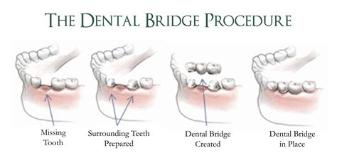 7 Reasons To Get Your Teeth Whitening Procedure Done By A Pro by How Does It Take To Get A Dental Bridge And What Is