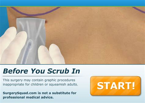 c section surgery games surgery games