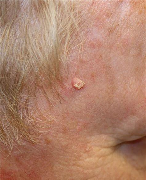 Melanoma White Spot Pictures