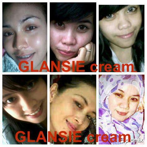 Wajah Glansie glansie solusi kulit wajah kusam jerawat komedo flek
