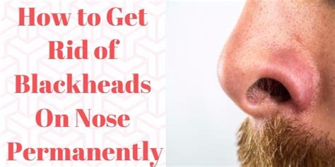 How To Get Rid Of Your Blackheads by How To Pop Blackheads On Nose Within Few Minutes