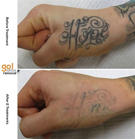 tattoo removal finger 825 best removal in progress images on