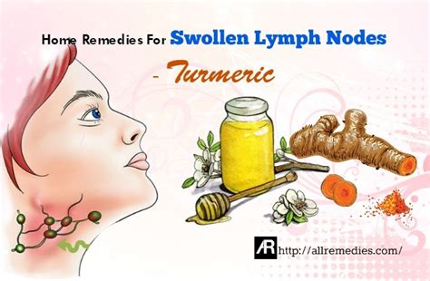 top 30 at home solutions to treat swollen lymph nodes in