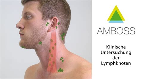 wo liegen die lymphknoten virchow lymphknoten med kom