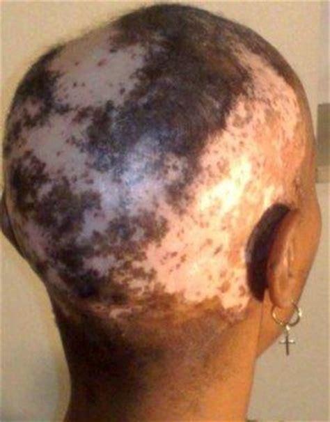 chemical relaxer and colour grey hair for blacks shelley dalton hoborecruitment twitter