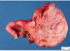 ovarian cysts - Humpath.com - Human pathology Real Ovaries