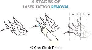 tattoo removal stages laser therapy vector clipart eps images 451 laser therapy