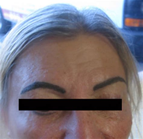 bad permanent makeup amp tattoos tattoo removal a ocean blog