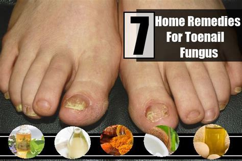 7 remedies for toenail fungus treatments cure