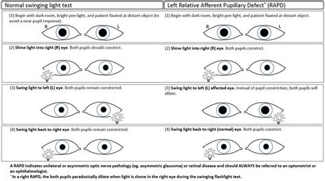 swinging light test practice a woman with a family history of glaucoma