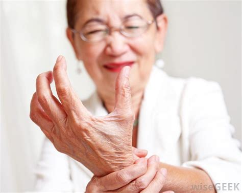 arthritis remedy what are the best homeopathic arthritis treatments
