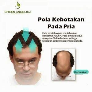 Obat Pelurus Rambut Keriting Permanen ancaman serius dari rambut botak permanen cara
