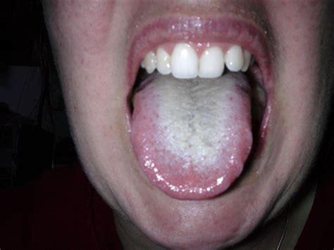 imagenes de manchas blancas en la boca galer 237 a 10 formas que tu lengua utiliza para pedir