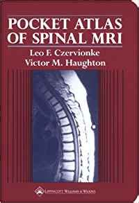 pocket atlas of spine surgery books pocket atlas of spinal mri 9780881675467 medicine