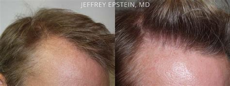 hair plugs for men hair transplants for men photos miami fl patient 38169