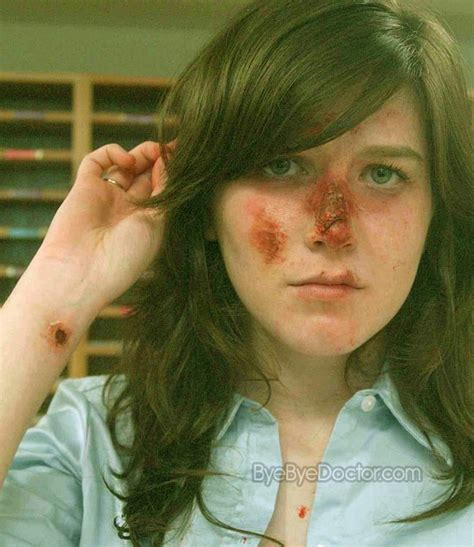nose treatment broken nose treatment image search results