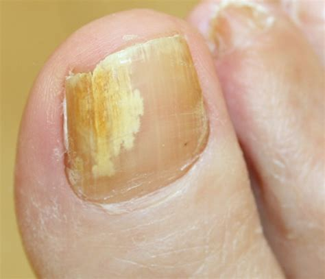 toenail separated from nail bed yellow toenails symptoms causes treatment pictures