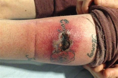 infected tattoo leaves grandma with gaping hole in leg