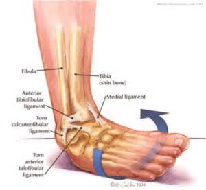 Interior Ankle Sprain by Ankle Traceur