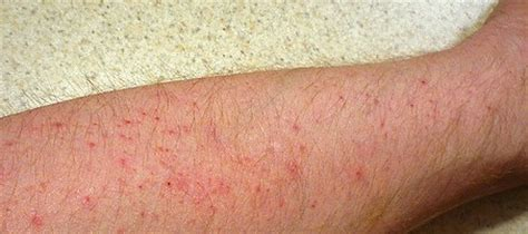 red bumps on legs itchy shins gallery