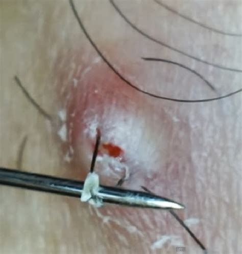 does waxing cause ingrown hairs how to prevent ingrown hair or razor bumps lorecentral