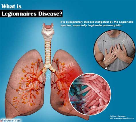 legionnaires disease i what is legionnaires disease signs symptoms treatment