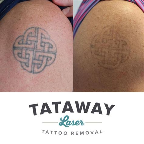 picosecond laser tattoo removal 100 pigmented lesions picosecond laser laser