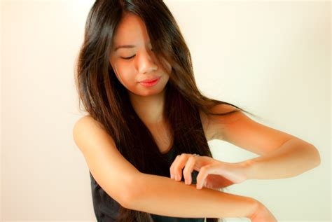 keeps scratching how to stop scratching irritated skin 7 steps with pictures