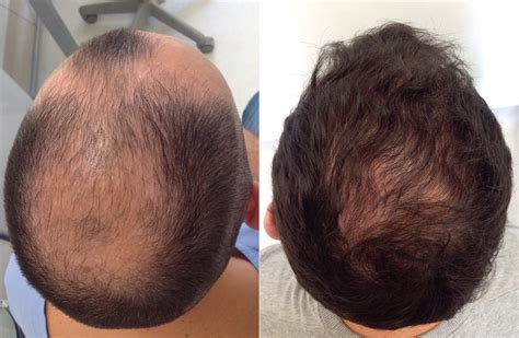 male pattern hair loss solutions how hair transplants can overcome male pattern baldness