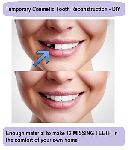 temporary tooth repair kit replace missing diy make 12