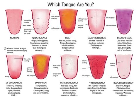 tcm tongue diagnosis complete health and happiness