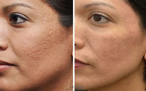 best acne scar acne scar archives comprehensive dermatology center of